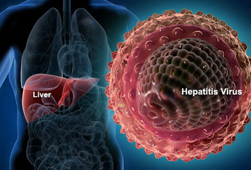 Govt urged to carryout massive sensitization on Hepatitis B