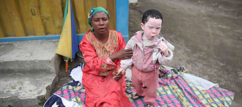 Kadaga  Asks Government to Cater for Persons Living with Albinism