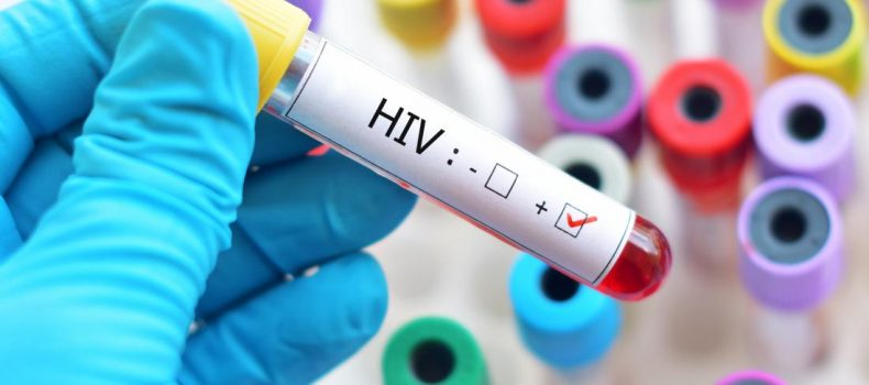 Lack of food forces HIV+psitive people in Karamoja from medication