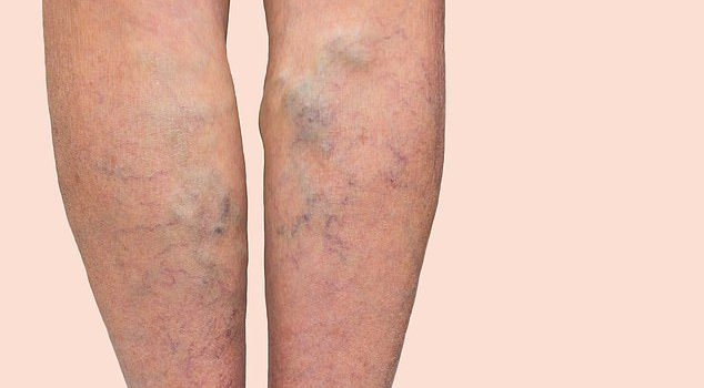 The taller you are the more likely you are to suffer from varicose veins: Scientists discover