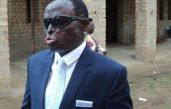 Mbarara Acid Victim Councilor Curses Perpetrators as He heads abroad for Operation.