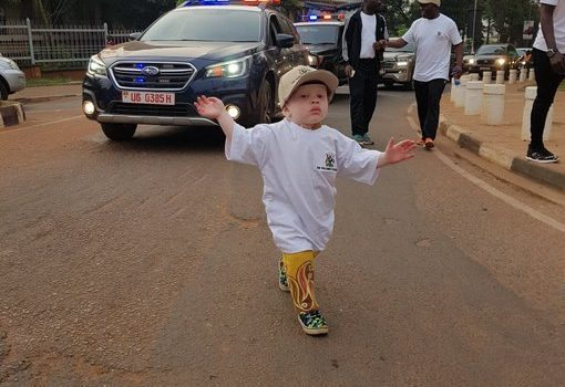 Uganda 2020 Parliament week kicks off, Shs5 bn needed to help Albinos.
