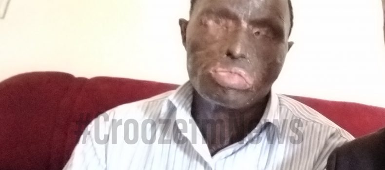 Mbarara acid attack victim retains NRM flag, vows never to cease his fight against corruption