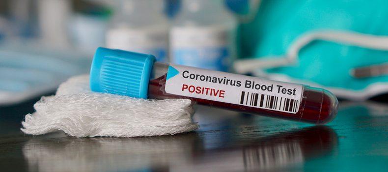 Rubanda inmate tests positive for COVID-19
